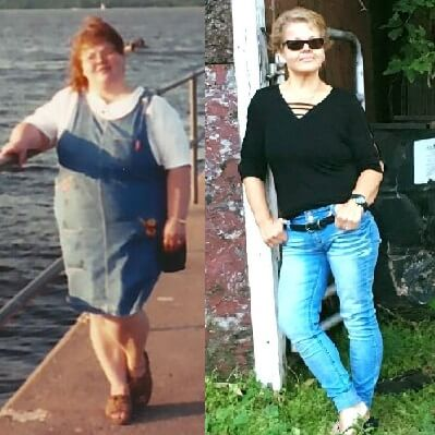 Tammy Before and After Weight Management