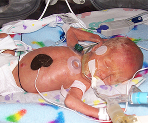 premature baby Ewan Vogelgesang in the St. Cloud NICU